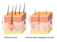 Implant Capillaire Maroc Quels Prix Les Meilleures Cliniques